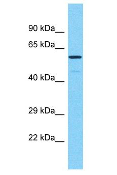 PRAMEF17 Antibody - PRAMEF17 antibody Western Blot of 721_B. Antibody dilution: 1 ug/ml.  This image was taken for the unconjugated form of this product. Other forms have not been tested.