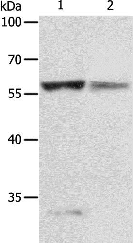 Western blot analysis of Jurkat cell and human fetal liver tissue, using PRCP Polyclonal Antibody at dilution of 1:200.