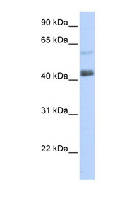 PRDM15 Antibody - PRDM15 antibody Western blot of 293T cell lysate. This image was taken for the unconjugated form of this product. Other forms have not been tested.