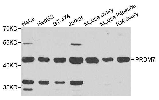 PRDM7 Antibody - Western blot analysis of extracts of various cells.