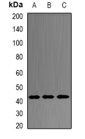 PRDM7 Antibody - Western blot analysis of PRDM7 expression in HepG2 (A); mouse intestine (B); rat ovary (C) whole cell lysates.