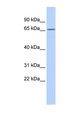 PRDM8 antibody Western blot of MCF7 cell lysate. This image was taken for the unconjugated form of this product. Other forms have not been tested.