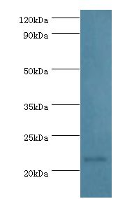 PRDX1 / Peroxiredoxin 1 Antibody - Western blot. All lanes: Peroxiredoxin-1 antibody at 2 ug/ml+HeLa whole cell lysate. Secondary antibody: Goat polyclonal to rabbit at 1:10000 dilution. Predicted band size: 22 kDa. Observed band size: 22 kDa.