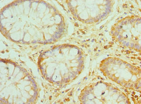 PRDX1 / Peroxiredoxin 1 Antibody - Immunohistochemistry of paraffin-embedded human colon cancer using PRDX1 Antibody at dilution of 1:100
