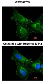 PRDX1 / Peroxiredoxin 1 Antibody - Immunofluorescence of methanol-fixed HeLa, using PRX I antibody at 1:200 dilution.