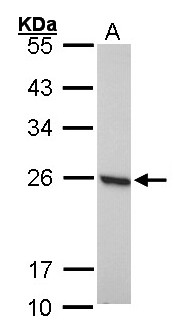 PRDX1 / Peroxiredoxin 1 Antibody - Sample (30 ug of whole cell lysate). A: 293T. 12% SDS PAGE. PRDX1 antibody diluted at 1:1000.