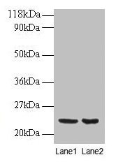 PRDX1 / Peroxiredoxin 1 Antibody - Western blot All lanes: perixiredoxin-1 antibody at 2µg/ml Lane 1: EC109 whole cell lysate Lane 2: 293T whole cell lysate Secondary Goat polyclonal to rabbit IgG at 1/15000 dilution Predicted band size: 21.9 kDa Observed band size: 21.9 kDa