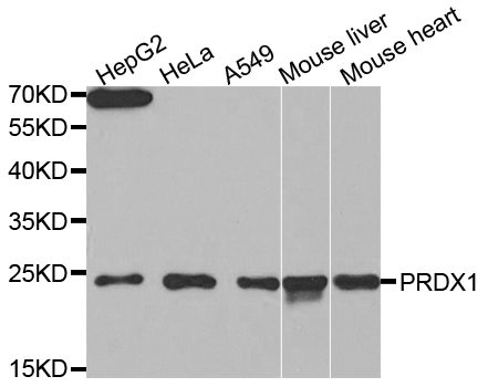 PRDX1 / Peroxiredoxin 1 Antibody - Western blot analysis of extracts of various cell lines.