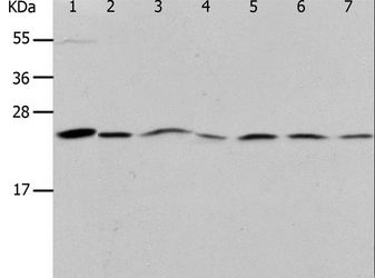 PRDX1 / Peroxiredoxin 1 Antibody - Western blot analysis of Mouse liver tissue, NIH/3T3, RAW264.7, 293T, K562, Jurkat and HeLa cell, using PRDX1 Polyclonal Antibody at dilution of 1:400.