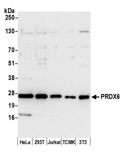 Detection of human and mouse PRDX6 by western blot. Samples: Whole cell lysate (15 µg) from HeLa, HEK293T, Jurkat, mouse TCMK-1, and mouse NIH 3T3 cells prepared using NETN lysis buffer. Antibody: Affinity purified rabbit anti-PRDX6 antibody used for WB at 0.1 µg/ml. Detection: Chemiluminescence with an exposure time of 10 seconds.