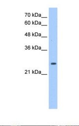 HepG2 cell lysate. Antibody concentration: 1.25 ug/ml. Gel concentration: 12%.  This image was taken for the unconjugated form of this product. Other forms have not been tested.