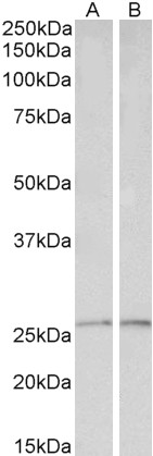 PRDX6 antibody (0.1 ug/ml) staining of Liver (A) and Heart (B) lysates (35 ug protein in RIPA buffer). Primary incubation was 1 hour. Detected by chemiluminescence.