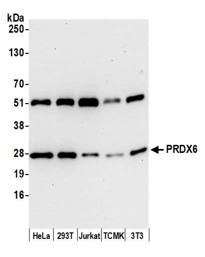 Detection of human and mouse PRDX6 by western blot. Samples: Whole cell lysate (15 µg) from HeLa, HEK293T, Jurkat, mouse TCMK-1, and mouse NIH 3T3 cells prepared using NETN lysis buffer. Antibody: Affinity purified rabbit anti-PRDX6 antibody used for WB at 0.1 µg/ml. Detection: Chemiluminescence with an exposure time of 30 seconds.