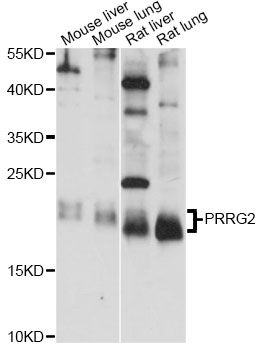 PRGP2 / PRRG2 Antibody - Western blot analysis of extracts of various cell lines, using PRRG2 antibody at 1:1000 dilution. The secondary antibody used was an HRP Goat Anti-Rabbit IgG (H+L) at 1:10000 dilution. Lysates were loaded 25ug per lane and 3% nonfat dry milk in TBST was used for blocking. An ECL Kit was used for detection and the exposure time was 15s.