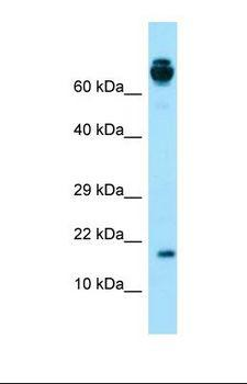 PRH2 Antibody - Western blot of Human Fetal Lung. PRH2 antibody dilution 1.0 ug/ml.  This image was taken for the unconjugated form of this product. Other forms have not been tested.