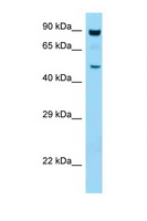 PRKAA1 / AMPK Alpha 1 Antibody - PRKAA1 / AMPK Alpha 1 antibody Western blot of Mouse Thymus lysate. Antibody concentration 1 ug/ml.  This image was taken for the unconjugated form of this product. Other forms have not been tested.