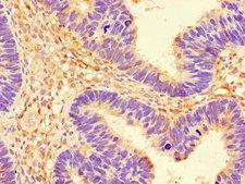 PRKAA1 / AMPK Alpha 1 Antibody - Immunohistochemistry of paraffin-embedded human ovarian cancer using PRKAA1 Antibody at dilution of 1:100
