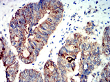 Immunohistochemical analysis of paraffin-embedded rectum cancer tissues using PRKAA2 mouse mAb with DAB staining.