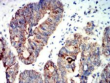 PRKAA2 / AMPK Alpha 2 Antibody - Immunohistochemical analysis of paraffin-embedded rectum cancer tissues using PRKAA2 mouse mAb with DAB staining.