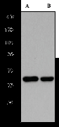 Western blot analysis on (A) HeLa and (B) MCF-7 cell lysates using anti- PKA C-alpha antibody, dilution 1:200000.