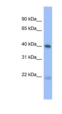 PRKACA antibody western blot of human placenta lysate.  This image was taken for the unconjugated form of this product. Other forms have not been tested.