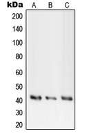 PRKACA + PRKACB + PRKACG Antibody - Western blot analysis of PKA C alpha/beta/gamma expression in HEK293T (A); mouse liver (B); rat liver (C) whole cell lysates.