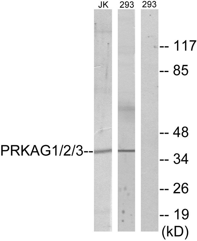 PRKAG1+2+3 Antibody - Western blot analysis of lysates from 293 and Jurkat cells, using PRKAG1/2/3 Antibody. The lane on the right is blocked with the synthesized peptide.