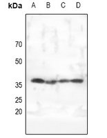 PRKAG1+2+3 Antibody - Western blot analysis of AMPK gamma 1/2/3 expression in HEK293T (A), HepG2 (B), MCF7 (C), PC3 (D) whole cell lysates.