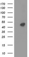 PRKAR2A Antibody - HEK293T cells were transfected with the pCMV6-ENTRY control (Left lane) or pCMV6-ENTRY PRKAR2A (Right lane) cDNA for 48 hrs and lysed. Equivalent amounts of cell lysates (5 ug per lane) were separated by SDS-PAGE and immunoblotted with anti-PRKAR2A.
