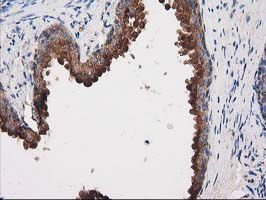PRKAR2A Antibody - IHC of paraffin-embedded Human prostate tissue using anti-PRKAR2A mouse monoclonal antibody.