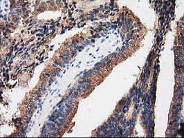 PRKAR2A Antibody - IHC of paraffin-embedded Carcinoma of Human prostate tissue using anti-PRKAR2A mouse monoclonal antibody.