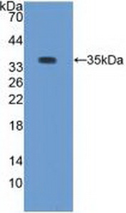 PRKCB / PKC-Beta Antibody - Western Blot; Sample: Recombinant PKCb1, Rabbit.