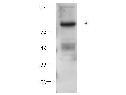 PRKCB / PKC-Beta Antibody - Western blot using the affinity purified anti-PKC beta antibody shows detection of PKC beta in ~25 µg of U251 whole cell lysate (glioma derived). A 4-12% gel was used for separation. The arrowhead corresponds to 76 kDa PKC beta. The membrane was probed with the primary antibody at a 1:1,000 dilution in 5% BSA in TTBS at 4° C, overnight.