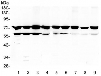 PRKCB / PKC-Beta Antibody - Western blot testing of rat 1) thymus, 2) spleen, 3) brain, 4) C6 cells, and mouse 5) thymus, 6) spleen, 7) brain, 8) Neuro-2a cells and 9) NIH 3T3 cell lysate with PKC beta antibody at 0.5ug/ml. Predicted molecular weight ~76 kDa.