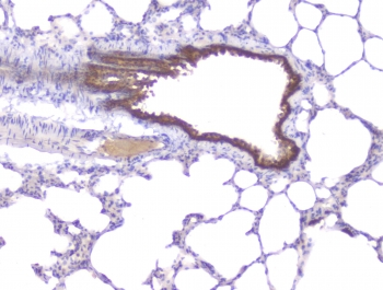 PRKCB / PKC-Beta Antibody - IHC staining of FFPE rat lung with PKC beta antibody at 1ug/ml. HIER: boil tissue sections in pH6, 10mM citrate buffer, for 10-20 min followed by cooling at RT for 20 min.