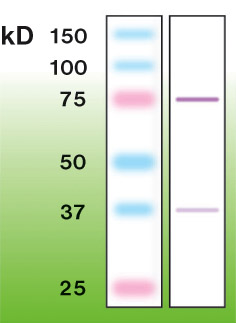 PRKCB / PKC-Beta Antibody - Western blot of PKC-betaII in mouse brain crude lysate (50 ug of protein loaded).