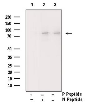 PRKCB / PKC-Beta Antibody - Western blot analysis of Phospho-PKCB (Ser661) antibody expression in heatshock treated HeLa cells lysates. The lane on the right is treated with the antigen-specific peptide.