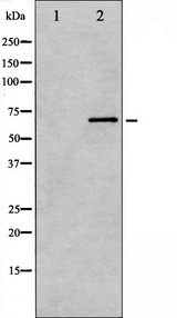 PRKCB / PKC-Beta Antibody - Western blot analysis of PKCB phosphorylation expression in heatshock treated HeLa whole cells lysates. The lane on the left is treated with the antigen-specific peptide.