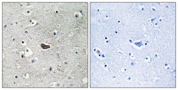 Immunohistochemistry analysis of paraffin-embedded human brain tissue, using PKC delta Antibody. The picture on the right is blocked with the synthesized peptide.