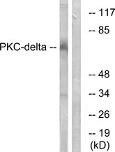 Western blot analysis of lysates from MCF7 cells, using PKC delta Antibody. The lane on the right is blocked with the synthesized peptide.