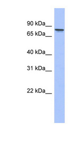 PRKCG / PKC-Gamma antibody LS-C111917 Western blot of Placenta lysate.  This image was taken for the unconjugated form of this product. Other forms have not been tested.