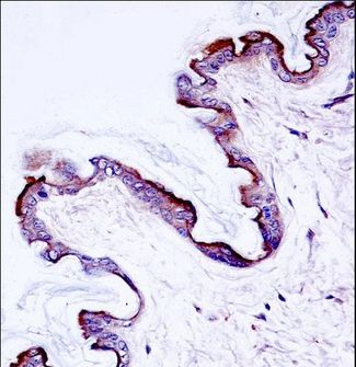 PRKCH / PKC-Eta Antibody - Mouse Prkch Antibody immunohistochemistry of formalin-fixed and paraffin-embedded mouse skin tissue followed by peroxidase-conjugated secondary antibody and DAB staining.