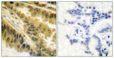 PRKCZ / PKC-Zeta Antibody - Peptide - + Immunohistochemical analysis of paraffin-embedded human lung carcinoma tissue using PKC? (Ab-410) antibody.