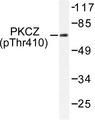 Western blot of p-PKC (T410) pAb in extracts from NIH/3T3 cells.