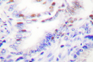 PRKCZ / PKC-Zeta Antibody - IHC of p-PKC (T410) pAb in paraffin-embedded human lung carcinoma tissue.
