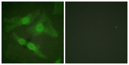Immunofluorescence analysis of HeLa cells, using PKC zeta (Phospho-Thr410) Antibody. The picture on the right is blocked with the phospho peptide.