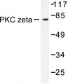 Western blot of PKC (P556) pAb in extracts from COS7 cells treated with PMA 125ng/ml 30'.