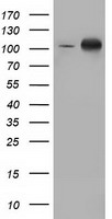 PRKD2 / PKD2 Antibody - HEK293T cells were transfected with the pCMV6-ENTRY control (Left lane) or pCMV6-ENTRY PRKD2 (Right lane) cDNA for 48 hrs and lysed. Equivalent amounts of cell lysates (5 ug per lane) were separated by SDS-PAGE and immunoblotted with anti-PRKD2.