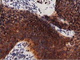 Immunohistochemical staining of paraffin-embedded Carcinoma of Human bladder tissue using anti-PRKD2 mouse monoclonal antibody. (Dilution 1:50).