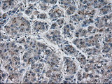 IHC of paraffin-embedded Carcinoma of liver tissue using anti-PRL mouse monoclonal antibody. (Dilution 1:50).